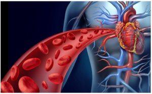 Problemas de la circulación sanguínea