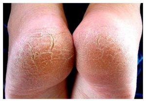 Tratamientos para las asperezas en los pies